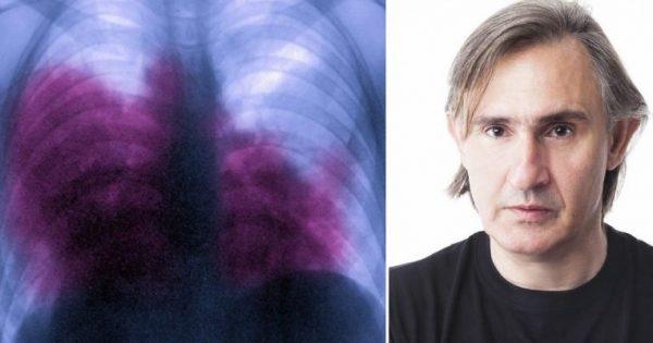 Νόσος των Λεγεωνάριων: Τα 9 συμπτώματα που δεν πρέπει να αγνοούμε!!!