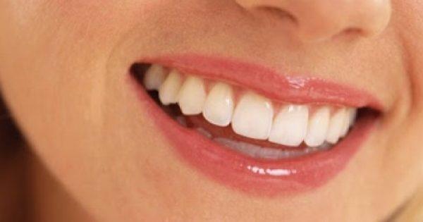 Σφραγίσματα Τέλος! Θεραπεύστε τα χαλασμένα σας δόντια μόνο με… ΔΙΑΤΡΟΦΗ