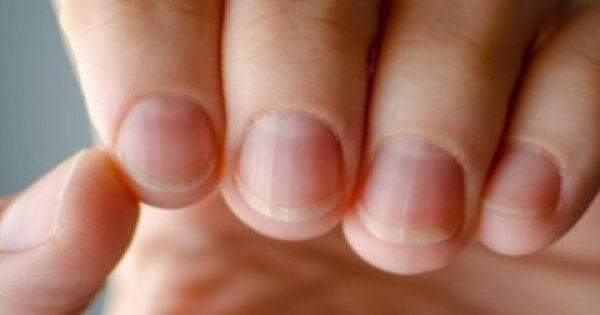 Για τι προβλήματα μας προειδοποιούν τα νύχια;
