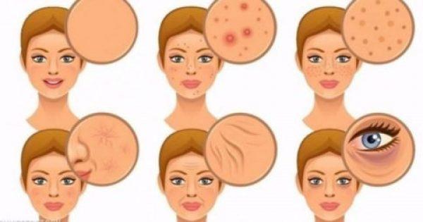 7 τροφές που είναι τοξικές για το δέρμα σας και πρέπει να τις αποφεύγετε
