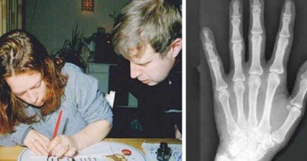 Οι Επιστήμονες το Επιβεβαίωσαν. Τελικά οι Αριστερόχειρες Έχουν το Χάρισμα!