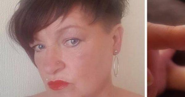 To ασυνήθιστο σχήμα των νυχιών αυτής της 53χρονης γυναίκας ήταν σημάδι καρκίνου – Η viral φωτογραφία…