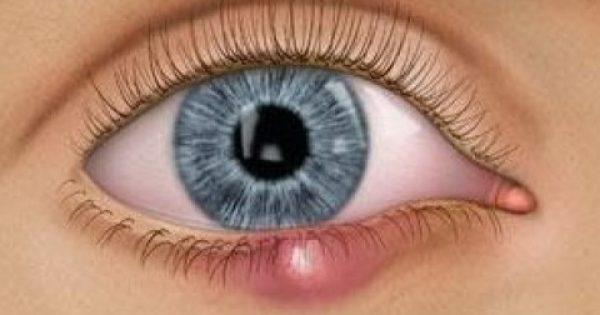 Τι είναι το χαλάζιο στο μάτι; Σε τι διαφέρει από το κριθαράκι; Από τι προκαλείται και πώς αντιμετωπίζεται; Πώς προλαμβάνεται η υποτροπή;