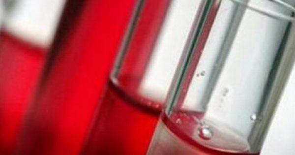 Νέα μέθοδος για την έγκαιρη διάγνωση του μυελώματος με εξέταση αίματος