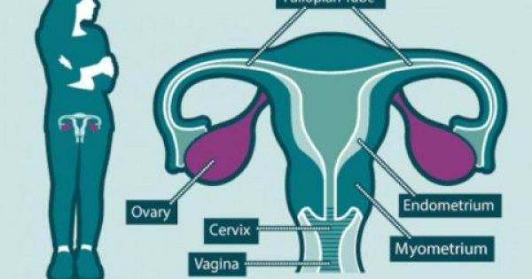 Πως να αποτρέψετε τον καρκίνο των ωοθηκών