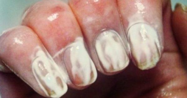 Απλώνει Οδοντόκρεμα στα Νύχια της και Αρχίζει να τα Τρίβει. Μόλις δείτε το Αποτέλεσμα, θα το Κάνετε κι εσείς