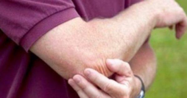 Βιολογική θεραπεία κατά της τενοντίτιδας