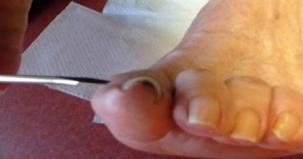 Πολύ Χρήσιμο: Δείτε τι πρέπει να κάνετε όταν το νύχι μπαίνει μέσα στο δέρμα