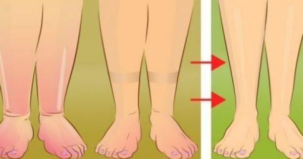 Ένας φυσικός τρόπος να απαλλαγείτε από την κατακράτηση του νερού στο σώμα σας!