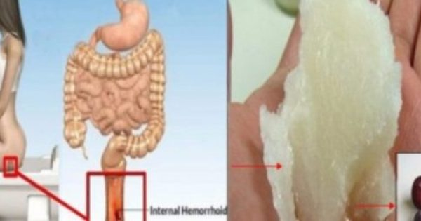 Πως να ανακουφιστείτε και να απαλλαγείτε από τις αιμορροΐδες με φυσικό τρόπο