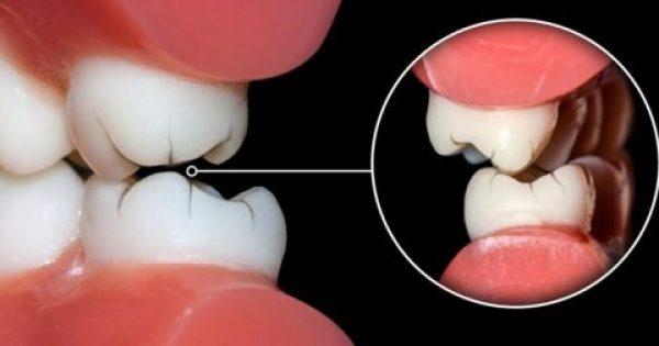 Πώς να σταματήσετε να τρίζετε τα δόντια σας το βράδυ