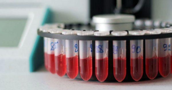 Αυξημένα λευκά αιμοσφαίρια: Δείτε τι σημαίνει ο δείκτης!!!