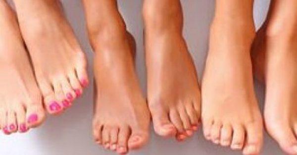 Αν δείτε αυτά τα σημάδια στα πόδια σας, αμέσως στον καρδιολόγο!