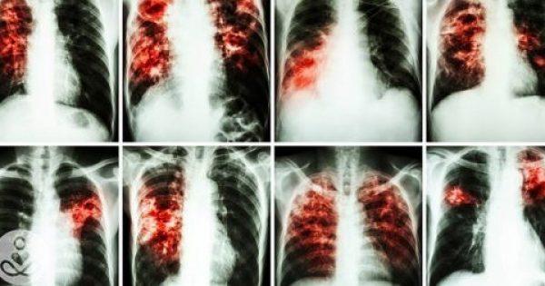 Έρευνα ΣΟΚ: Τα Αρώματα είναι ΠΙΟ Καρκινογόνα από το Κάπνισμα