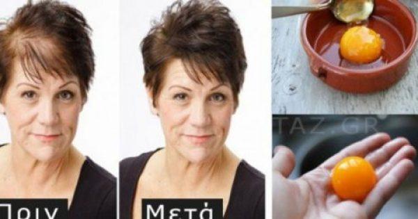Ξέχνα την εμφύτευση! Βάλε αυτά τα 3 συστατικά και θα δεις τα μαλλιά σου να βγαίνουν «πιο πυκνά» και «πιο δυνατά» από ποτέ
