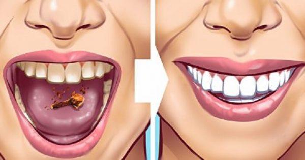 Έχετε Πέτρα στα Δόντια σας; Απαλλαγείτε φυσικά με ΑΥΤΕΣ τις 9 σπιτικές Θεραπείες!