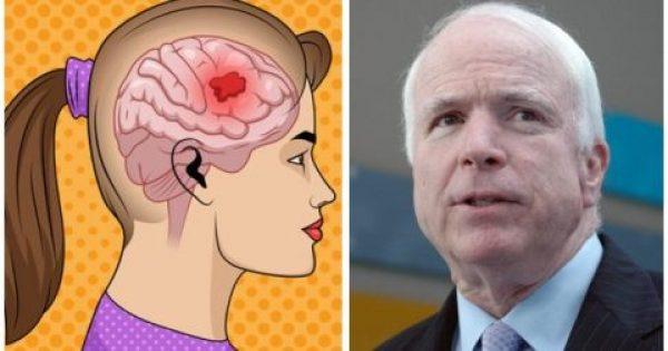 Διάσημος Χειρουργός Προειδοποιεί: 7 Πρώιμα Σημάδια του Καρκίνου του Εγκεφάλου που Όλοι Πρέπει να Γνωρίζουμε