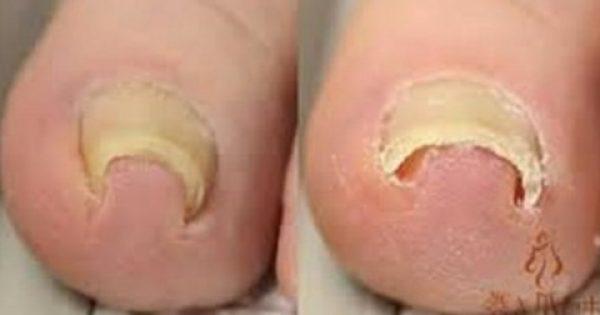 Απίστευτο: δείτε πως μπορείτε να αποκαταστήσετε το γύρισμα των νυχιών στο δέρμα!