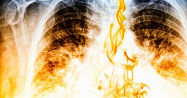 Σε πόσο καιρό θα καθαρίσουν οι πνεύμονες, αν κόψετε σήμερα το κάπνισμα!!!