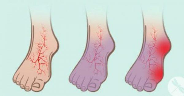 Καταπολεμήστε αποτελεσματικά τους Κιρσούς στα Πόδια και την Φλεβίτιδα με ΑΥΤΕΣ τις 6 Φυσικές Θεραπείες
