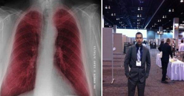 Σπουδαία ανακάλυψη για τη θεραπεία της πνευμονικής ίνωσης με επικεφαλής τον Έλληνα Πνευμονολόγο, Αρ. Τζουβελέκη