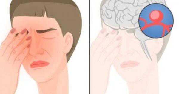 11 Σημάδια-Καμπανάκια του Εγκεφαλικού που ΔΕΝ πρέπει να Αγνοείτε. Ιδιαίτερη Προσοχή στο #6!