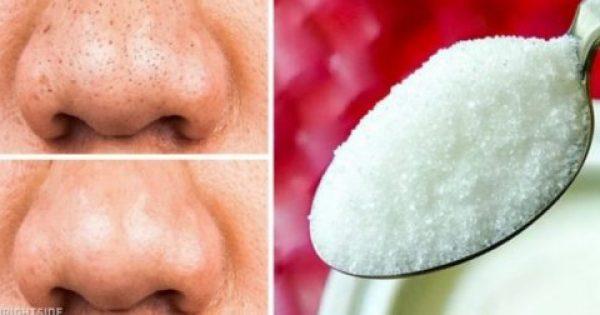 12 Φυσικά Προϊόντα Που Θα Βοηθήσουν Να Μείνει Το Δέρμα Σας Για Πάντα Νέο! Δοκιμάστε Τα Όλα