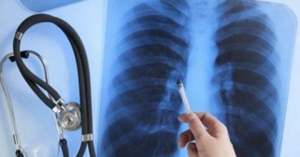 ΕΕ: Εγκρίθηκε νέα θεραπεία για τον καρκίνο πνεύμονα