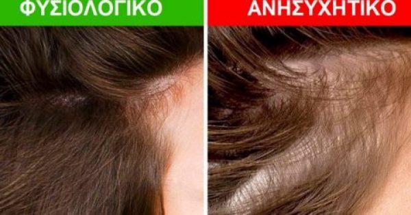 8 Σημαντικά Πράγματα που αποκαλύπτουν τα Μαλλιά μας για την Υγεία μας. Ιδιαίτερη προσοχή στο #5!