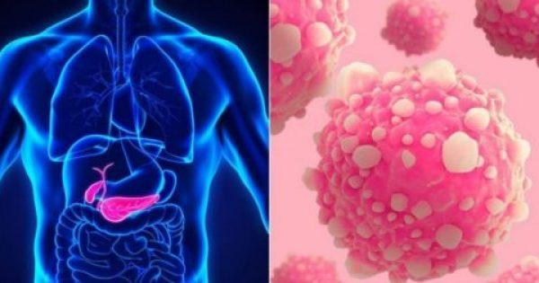 Καρκίνος Παγκρέατος: Ένα σύμπτωμα του, που μπορεί να τον προλάβει!