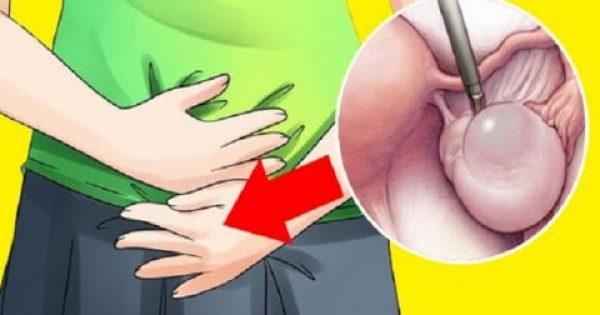 Προειδοποιητικά σημάδια κύστεων των ωοθηκών – Φυσική αντιμετώπιση..