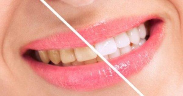 Πώς να αποκτήσετε ολόλευκα δόντια με φυσικό τρόπο!