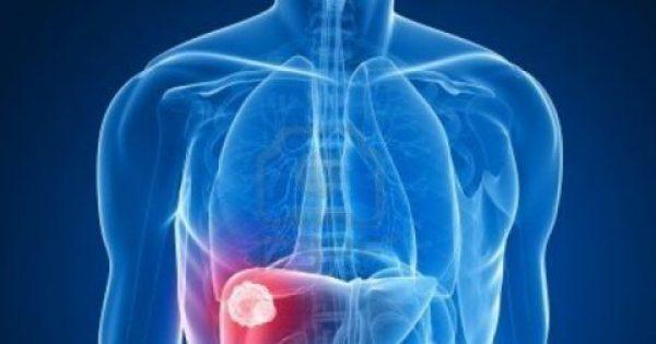 Αυτό είναι το πιο θανατηφόρο φαγητό – Προκαλεί καρκίνο στο συκώτι…