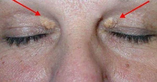 Προσοχή: Τι κίνδυνο αποκαλύπτουν αυτά τα σημάδια στα μάτια