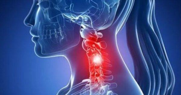 6 ασκήσεις για να απαλλαγείτε από τον πόνο στον αυχένα