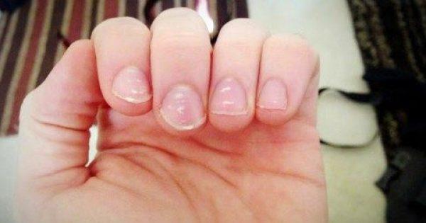 Αν δείτε αυτές τις λευκές κηλίδες στα νύχια σας, θα πρέπει να δείτε έναν γιατρό αμέσως