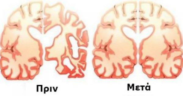 Άντρας με Αλτσχάιμερ δοκίμασε ΑΥΤΗ τη Συνταγή για 60 μέρες. Δείτε ΤΙ συνέβη στον εγκέφαλό και Σόκαρε τους Επιστήμονες!