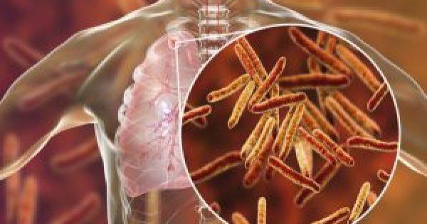 Τι πρέπει να ξέρετε για την φυματίωση: Συμπτώματα, πώς κολλάει και τι θεραπεία έχει!!!