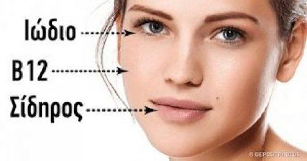 5 σημάδια έλλειψης βιταμινών κυριολεκτικά γραμμένα στο πρόσωπό μας
