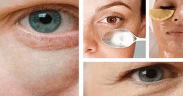 Σακούλες κάτω από τα μάτια: Γιατί δημιουργούνται και πώς θα τις αντιμετωπίσετε