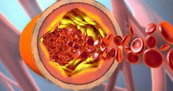 Καλή χοληστερίνη (HDL): Πώς αυξάνεται – Όρια για άντρες και γυναίκες!!!