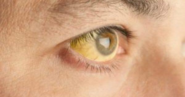 Κίτρινα μάτια: Τι σύμπτωμα είναι – Ποιοι πρέπει να προσέχουν!!!