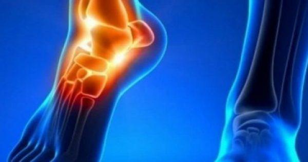 Ουρική αρθρίτιδα: Τέσσερα καθημερινά ροφήματα που αυξάνουν τον κίνδυνο