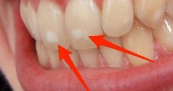 Πού οφείλονται ΑΥΤΑ τα λευκά σημάδια στα δόντια – Τι πρέπει να κάνετε!!!