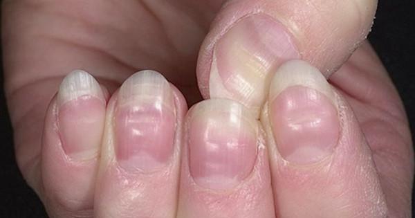 10 προειδοποιήσεις που σας στέλνουν τα νύχια σας