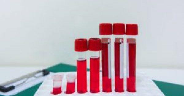 Χαμηλός και υψηλός αιματοκρίτης: Τι σημαίνουν οι τιμές για την υγεία σας!!!