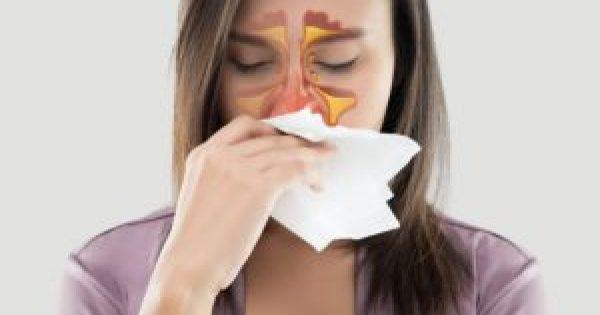 Ιγμορίτιδα: Πόσο διαρκεί – Τι να κάνετε για πονοκέφαλο και μπούκωμα!!!