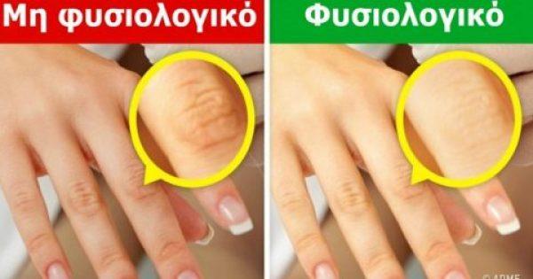 Κοιτάξτε ΤΩΡΑ προσεκτικά τα Χέρια σας. Εάν έχετε Κάποιο από ΑΥΤΑ τα 9 Σημάδια, επισκεφθείτε οπωσδήποτε τον Γιατρό σας!