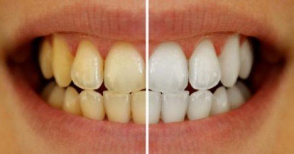 Κίτρινα δόντια: Τα καθημερινά λάθη που ευθύνονται