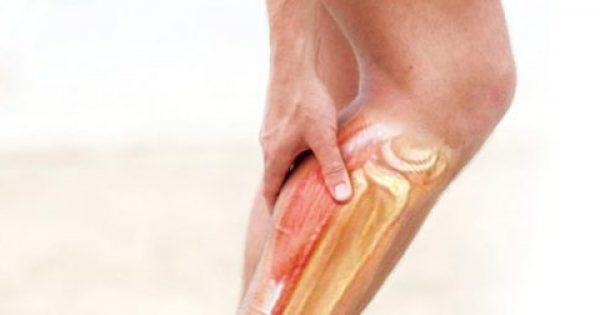 Τι σημαίνουν οι κράμπες στα πόδια;